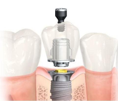 implant parçaları